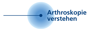 Arthroskopie verstehen